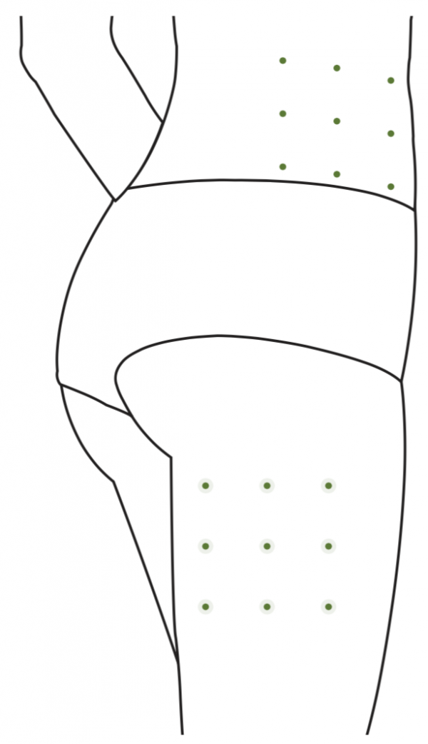 Podkožné rozmiestnenie